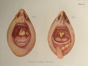 Popular items for mouth teeth