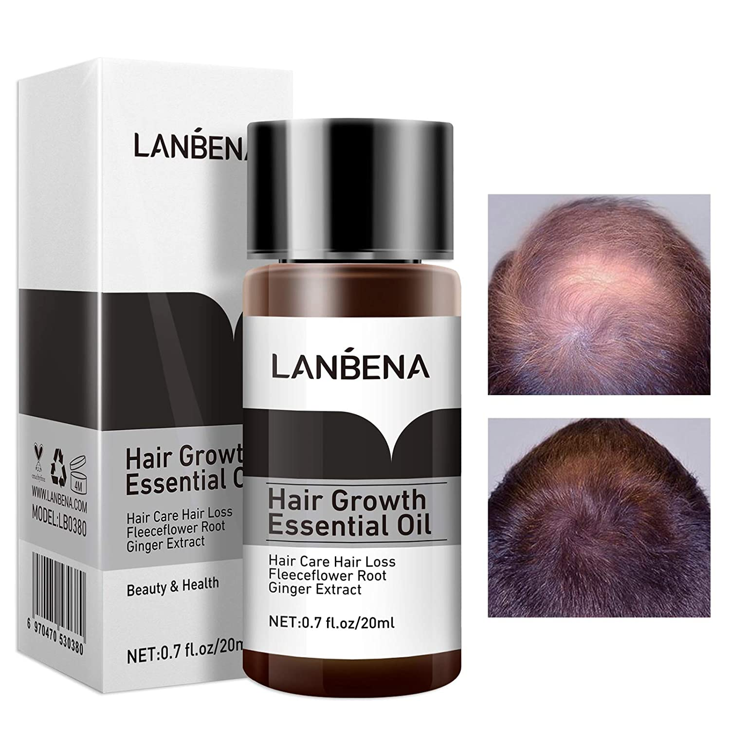 Castor oil organic and authentic castor oil processed the traditional jamaican way stimulates hair growth … Buy Lanbena Hair Growth Essential Spray Price In Bangladesh Cloud Shop Bd Cloudshopbd Com At Lowest Price Cloudshopbd Com