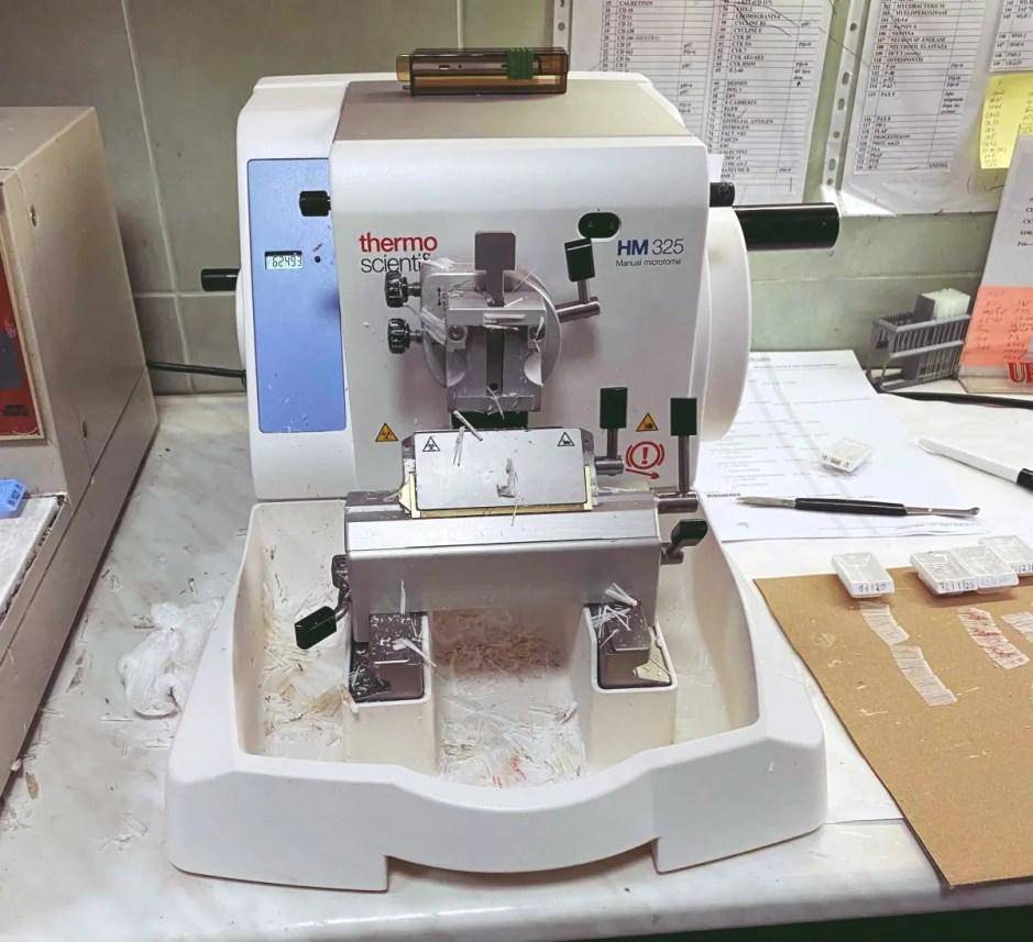 Nouă noi echipamente medicale de ultimă generație la Institutul Oncologic din Cluj-Napoca