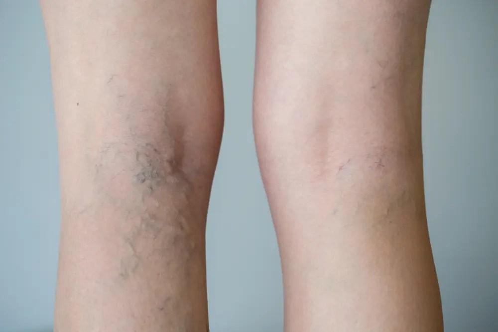 De ce există un picior fierbinte cu varice?