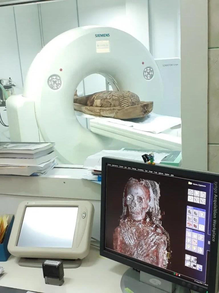 Proiect inedit la Cluj: investigare imagistică a unei mumii din Egiptul Antic
