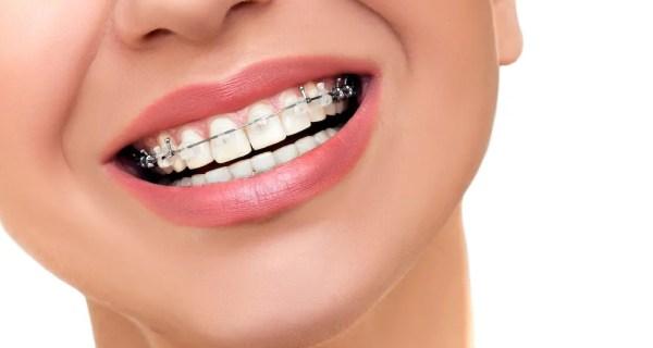 Pot fi efectuate tratamentele de canal atunci când porți aparat dentar