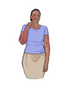 Ebola symptom: skin rash. © CDC