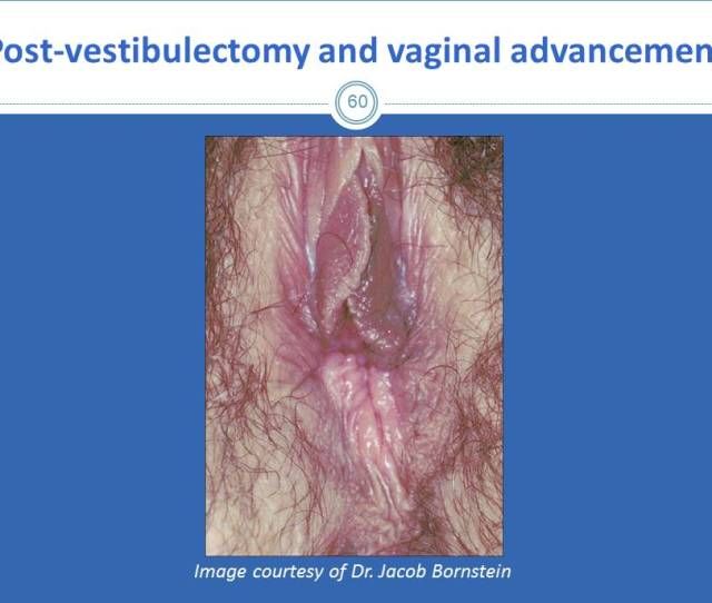 This Is An Image Of The Vulva Three Months Post Vestibulectomy And Vaginal Advancement In This Type Of Surgery The Vagina Is Pulled And Sutured To The
