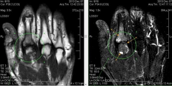 МРТ кисти руки и лучезапястного сустава: преимущества ...