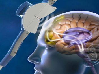 Lee más sobre el artículo Qué es la estimulación magnética transcraneal con la que combaten la depresión