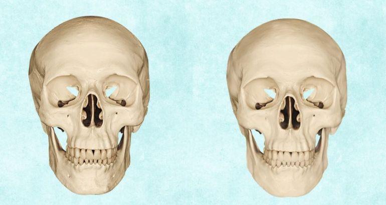 skull retouch