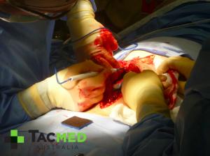 Gunshot wound laparotomy 1