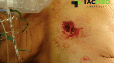 (WARNING: GRAPHIC IMAGES) Through-and-through gunshot wound to the chest