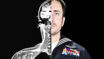 New Center for Brain Health to treat Veterans with TBI and PTSD