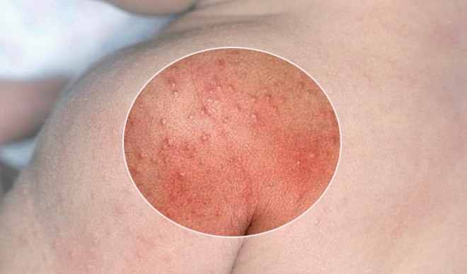 7 reasons and remedies for heat rash in babies