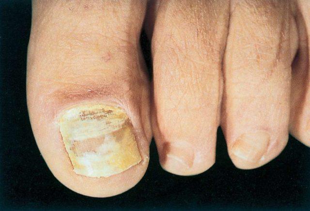 cliomakeup-unghie-piedi-4