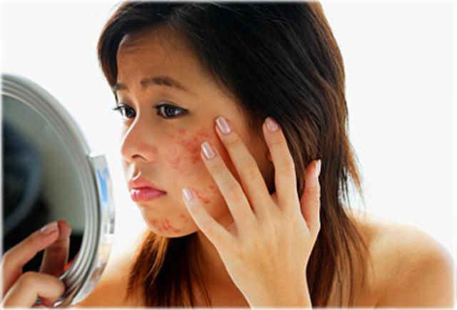 cliomakeup-acne-tardiva-4