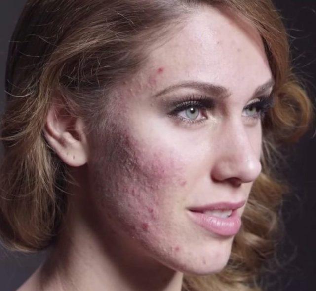 cliomakeup-acne-tardiva-6