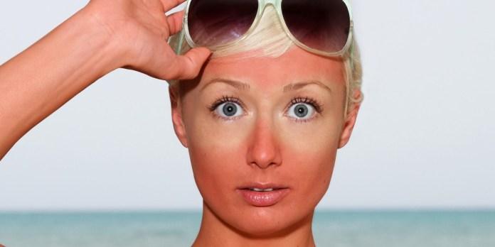 cliomakeup-skincare-routine-pelle-mista-19-ustioni-sole