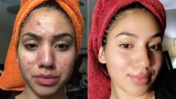 cliomakeup-skincare-pelle-acneica-5-problematiche-acne