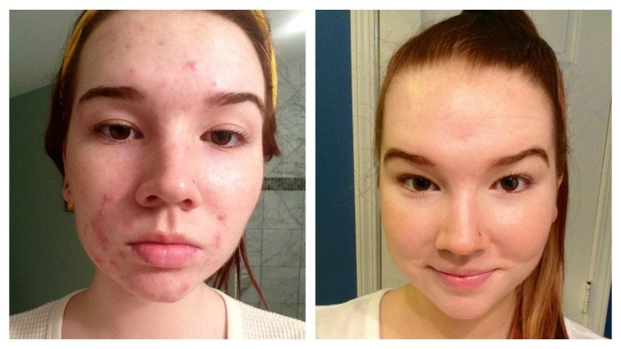 cliomakeup-skincare-pelle-acneica-20-acne-prima-dopo