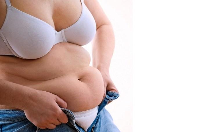 cliomakeup-chirurgia-bariatrica-donna-obesa-4