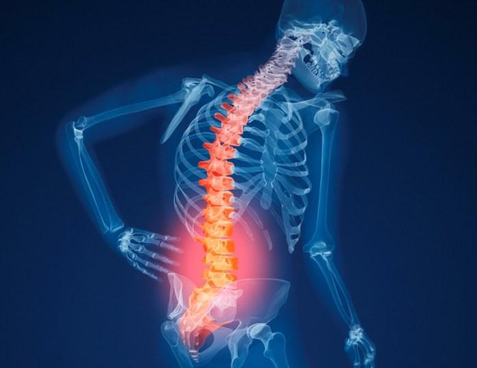 cliomakeup-prevenzione-osteoporosi-8-frattura