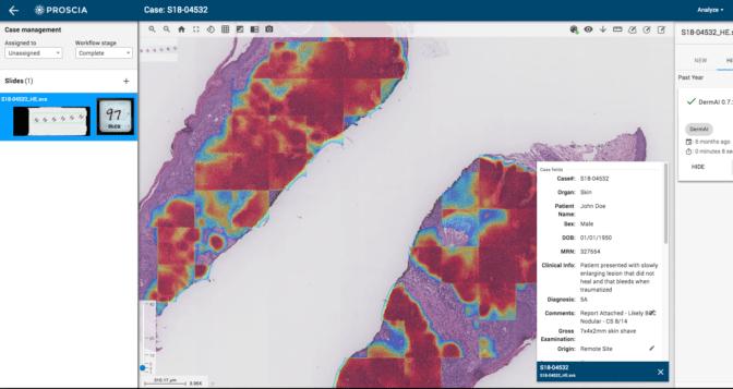 screenshot of Proscia's DermAI tool