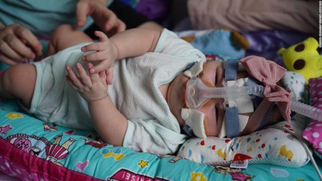 Yu Xuan fue dada de alta en julio después de 13 meses en el hospital.