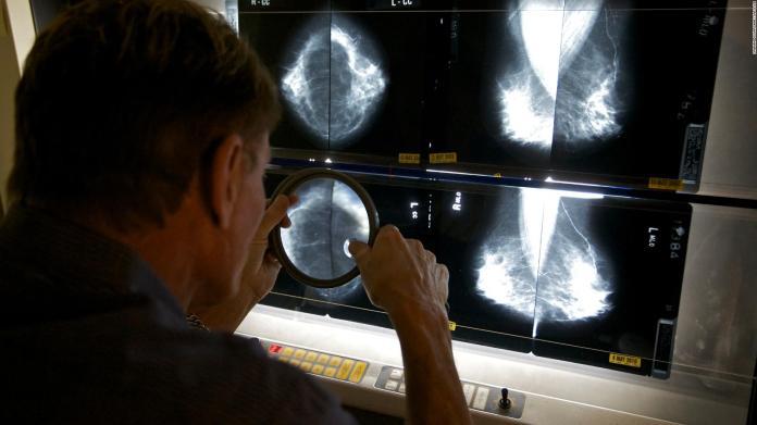 EE.UU.: pandemia retrasó exámenes de cáncer