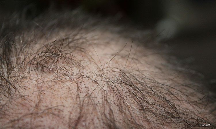 Image result for thinning hair man and women
