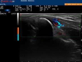 Proximal insertion of common flexor tendon: same scan with Power-Doppler