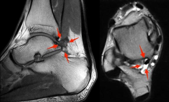 Posterior Ankle Impingement