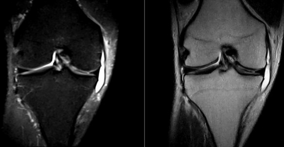 medial-collateral-ligament-bursa