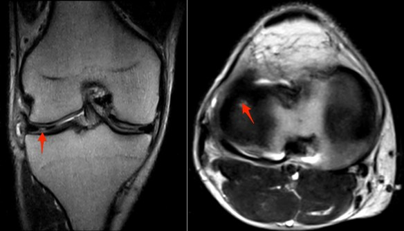 lateral-meniscus-complex-tear
