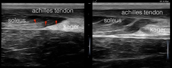 soleus-injury