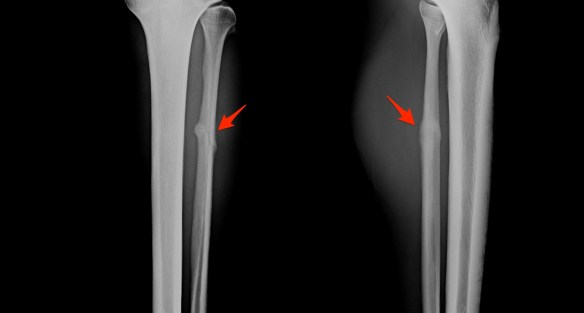 Peroneal Fracture Healing