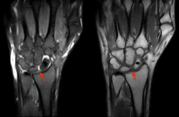 Dorsal Scapholunate Ligament Tear Coachingultrasound