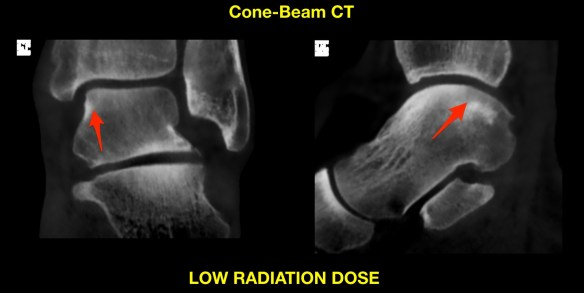 Talar Injury CT