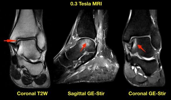 Talus Injury MRI