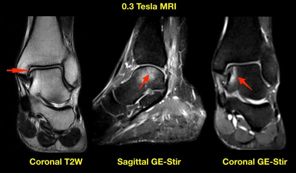 Talus Injury MRI