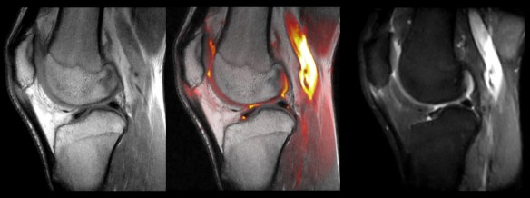 Mri Patellar tendon Tendinopathy