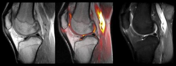 Mri Patellar tendon Tendinopathy