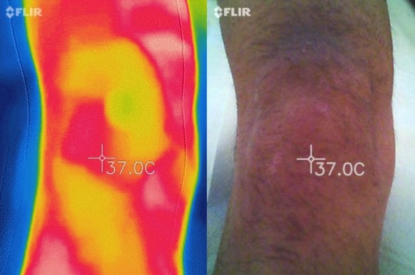 termography-knee