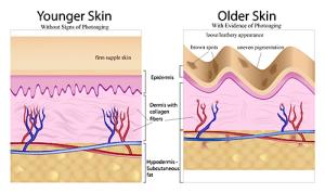 sunburn (1)