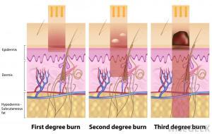 sunburn (11)