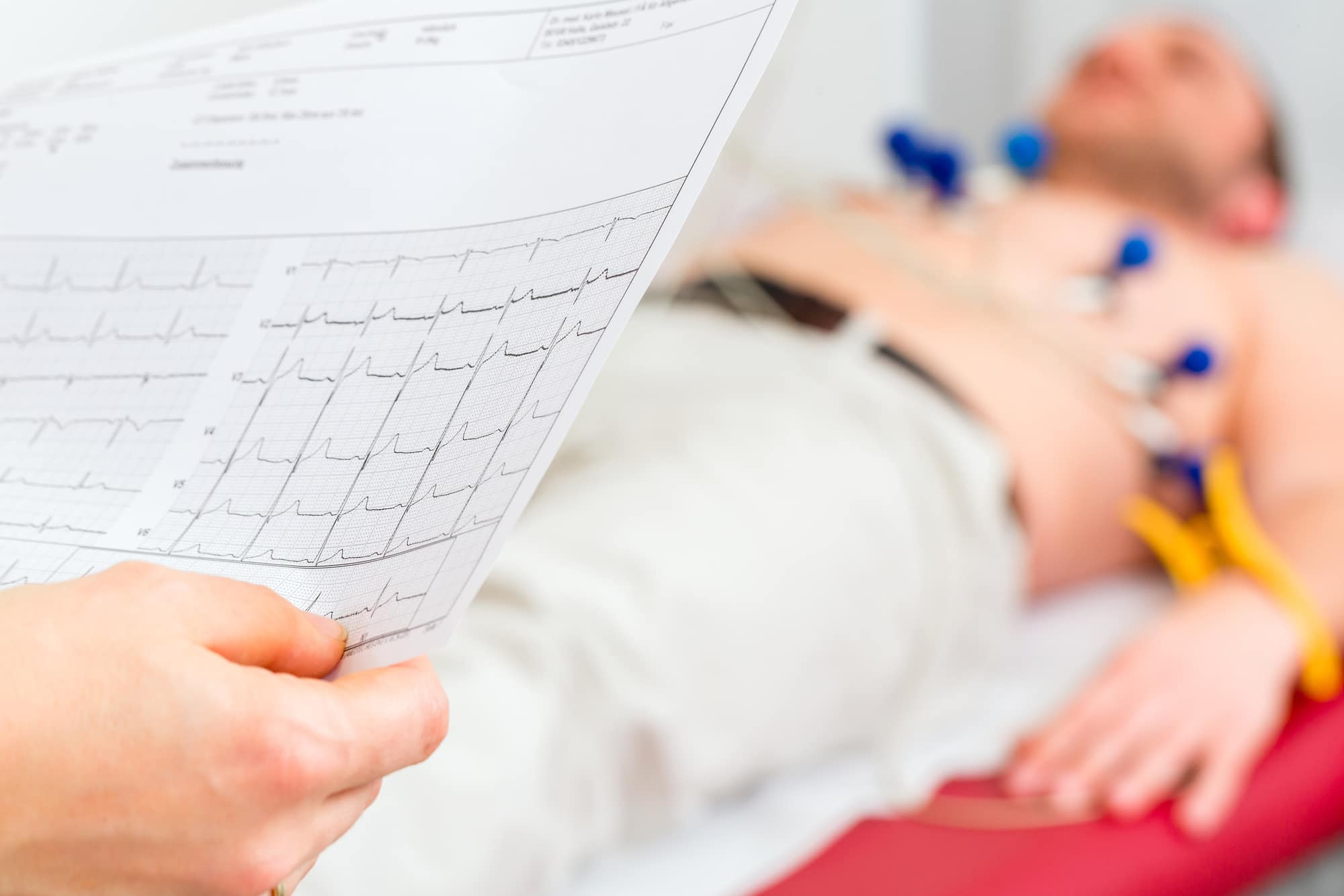 what is an EKG for