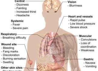 Snakebite Symptoms