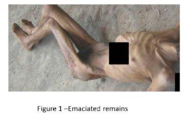 21. Fiscales internacionales denuncian torturas en Siria