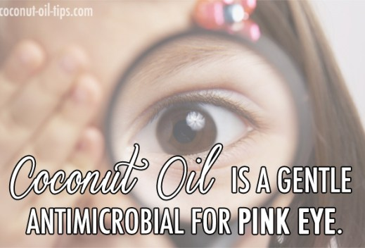 Coconut Oil Pink Eye Cure – Best Natural Remedy