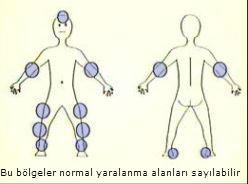 yaralanma-bolgeleri