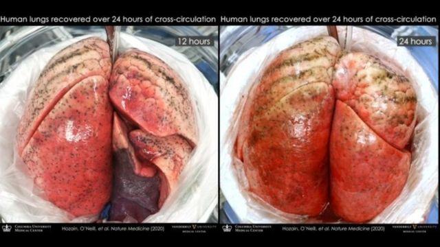 Curan Pulmones Cerdos