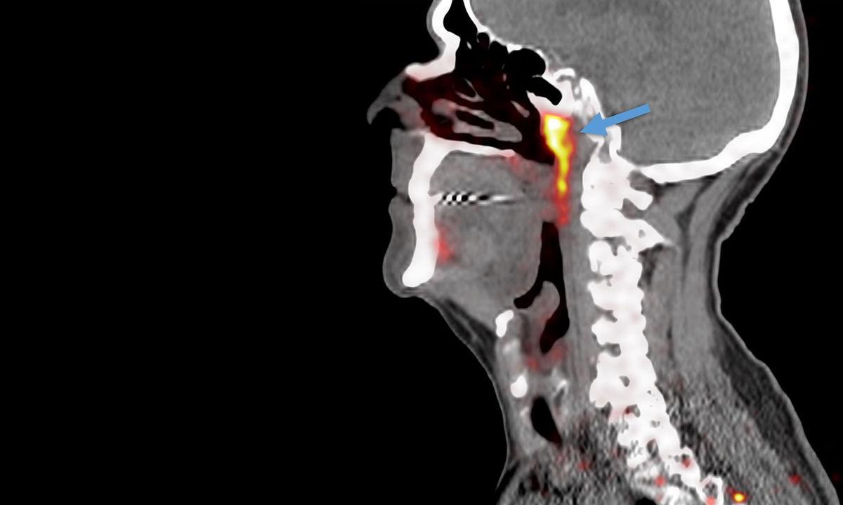 Nuevo órgano en el cerebro