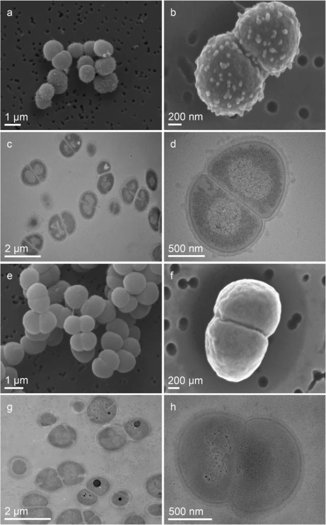 Científicos analizan bacteria